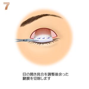 眼瞼下垂、余った腱膜の切除