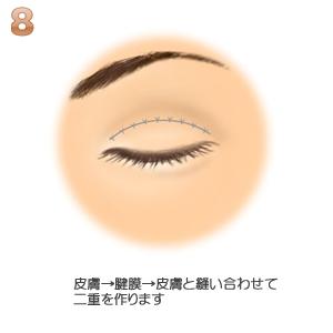 眼瞼下垂、二重の確認
