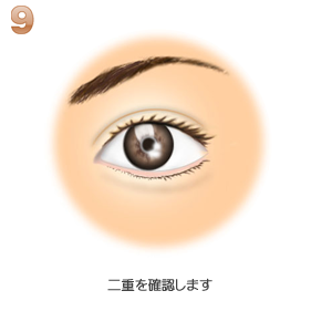 眼瞼下垂、完成