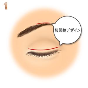 眼瞼下垂(筋膜移植.ゴアテックス):切開デザイン