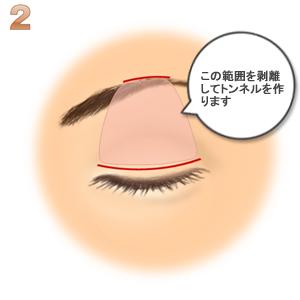 眼瞼下垂(筋膜移植.ゴアテックス):切開トンネルを作る