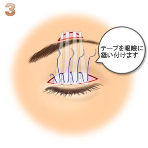 眼瞼下垂(筋膜移植.ゴアテックス):テープを瞼板に縫い付け