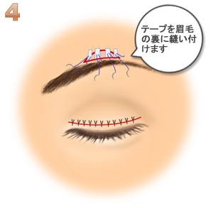 眼瞼下垂(筋膜移植.ゴアテックス):テープを眉毛の裏に縫い付け