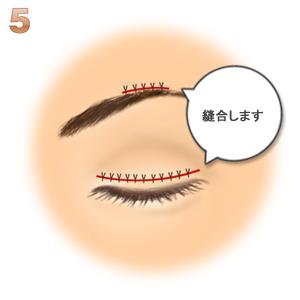 眼瞼下垂(筋膜移植.ゴアテックス):縫合