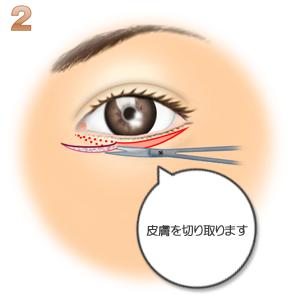 グラマラスライン(皮膚側):皮膚を切り取る