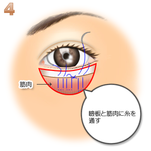 グラマラスライン(皮膚側):瞼板と筋肉に糸を通す