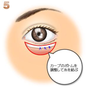 グラマラスライン(皮膚側):瞼板と筋肉の縫合