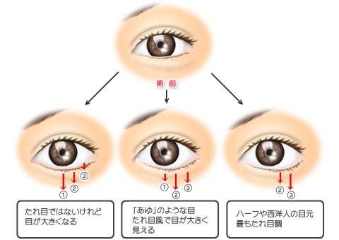 グラマラスライン形成、3つのパターン