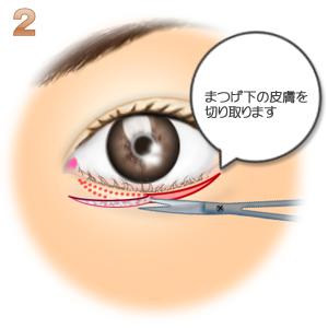 グラマラスライン形成逆まつげ修正、余った皮膚の切除
