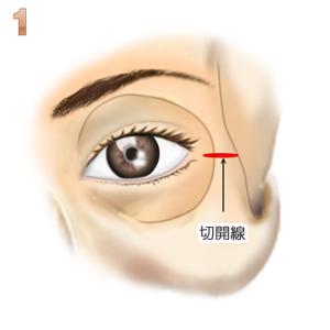 目尻靭帯移動、切開線