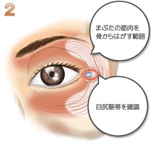 目尻靭帯移動、靭帯確認