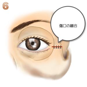 目尻靭帯移動、完成