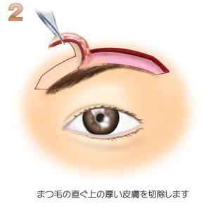ブローリフト術、皮膚の切除