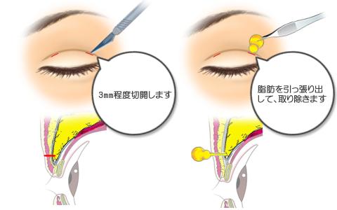 上眼瞼脱脂:切開する場所と脱脂