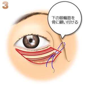 下眼瞼切開、眼輪筋を縫い付ける