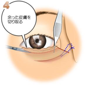 下眼瞼切開、余った皮膚の切除