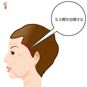 こめかみリフト術:髪の毛はえぎわ切開