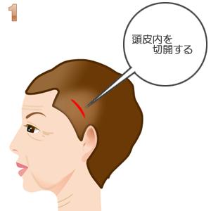 こめかみリフト術:頭髪内より切開