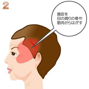 こめかみリフト術:頭皮を骨から剥がす