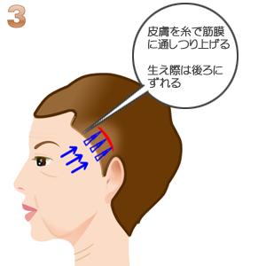 こめかみリフト術:額の皮膚のつり上げ