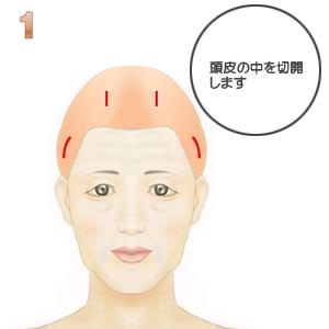 前額部ミニリフト術(頭髪内小切開):頭皮内切開