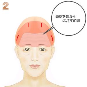 前額部ミニリフト術(頭髪内小切開):頭皮を骨から剥がす