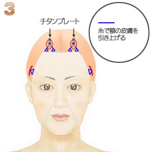 前額部ミニリフト術(頭髪内小切開):額の皮膚の持ち上げ