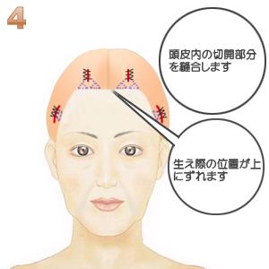前額部ミニリフト術(頭髪内小切開):頭皮内切開の縫合