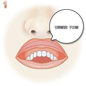 口唇縮小術、切除範囲のデザイン