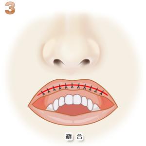 口唇縮小術:縫合