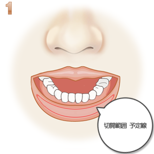 上口唇縮小術、切除範囲のデザイン