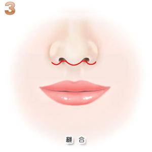 上口唇短縮術:縫合