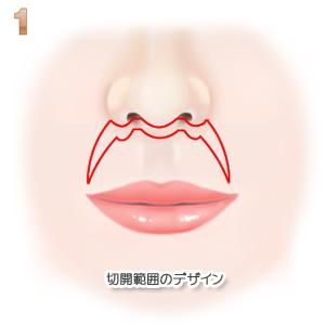 上口唇短縮術、切除範囲のデザイン