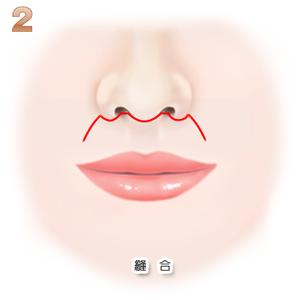 上口唇短縮術、切除