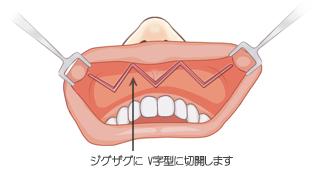 口唇拡大手術 切開線