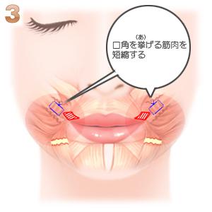 口唇拡大手術 筋肉を短縮