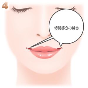 口唇拡大手術 縫合