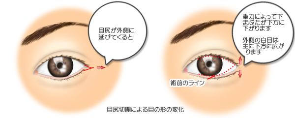 目尻切開、術前・術後比較