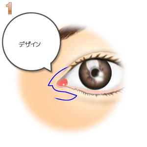 蒙古襞形成下眼瞼flap法、デザイン