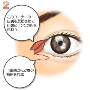 蒙古襞形成下眼瞼flap法、下眼瞼から短冊を作成