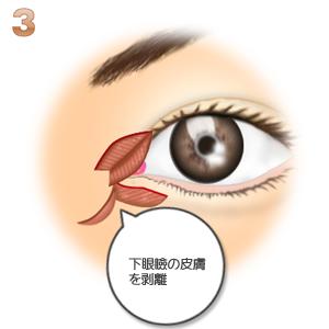 蒙古襞形成下眼瞼flap法、皮膚の剥離