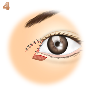 蒙古襞形成下眼瞼flap法