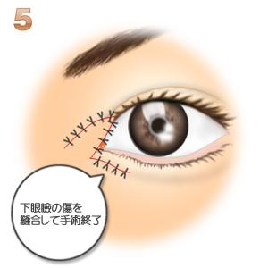 蒙古襞形成下眼瞼flap法、縫合して蒙古襞完成