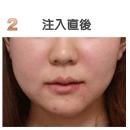 脂肪溶解注射(リポビーン)症例写真「注入直後」