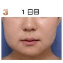 脂肪溶解注射(リポビーン)症例写真「1日目」