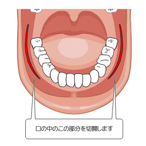 咬筋萎縮:切開線