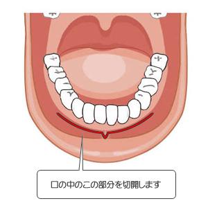 アゴ切り(中抜き)口の中の切開位置