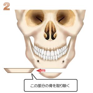 アゴ切り(中抜き):骨切りの位置