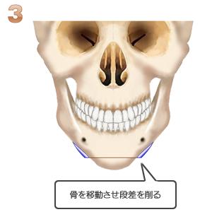 アゴ切り(中抜き):骨切り後段差を削る