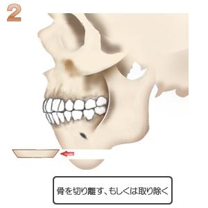 アゴ切り(中抜)+前出し:骨切りの位置